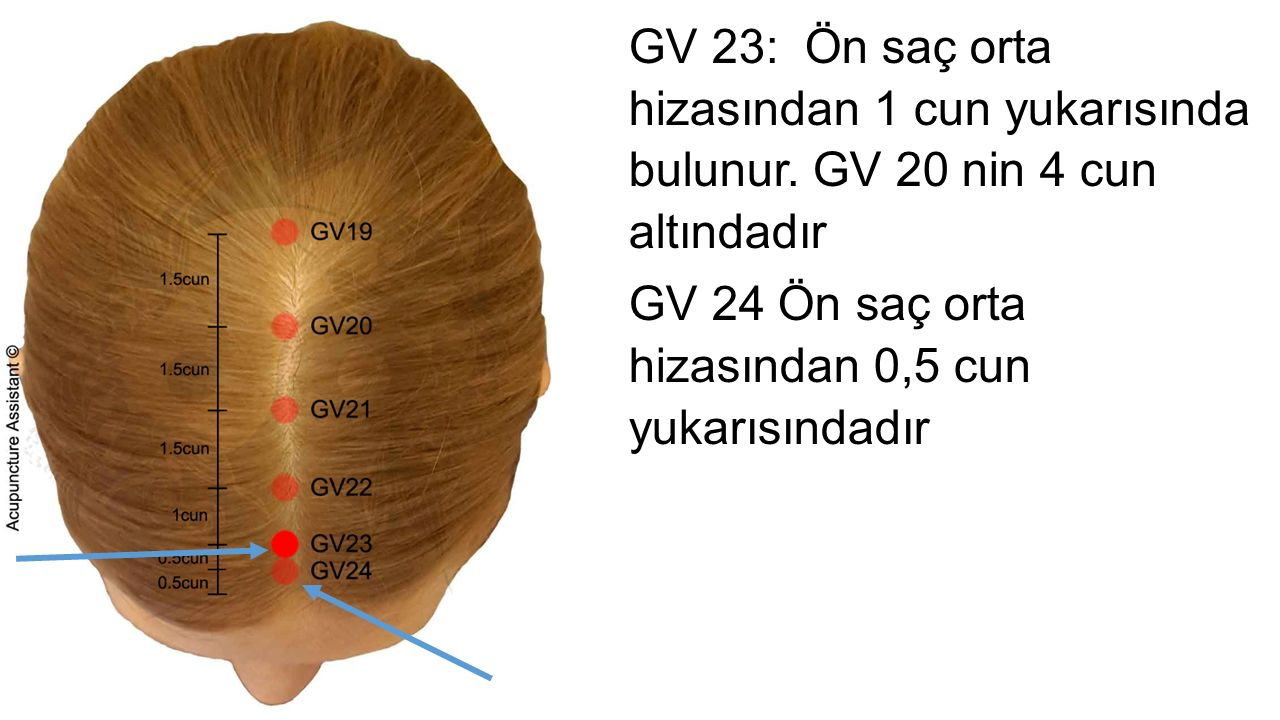 GV 23: Ön saç orta hizasından 1 cun yukarısında bulunur.