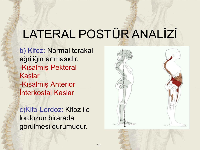13 b) Kifoz: Normal torakal eğriliğin artmasıdır. -Kısalmış Pektoral Kaslar -Kısalmış Anterior İnterkostal Kaslar c)Kifo-Lordoz: Kifoz ile lordozun bi