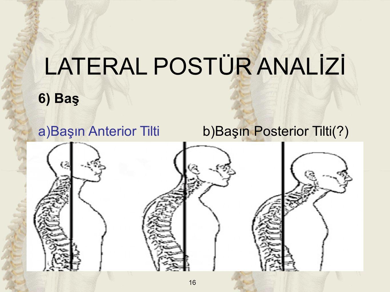 16 6) Baş a)Başın Anterior Tilti b)Başın Posterior Tilti(?) LATERAL POSTÜR ANALİZİ