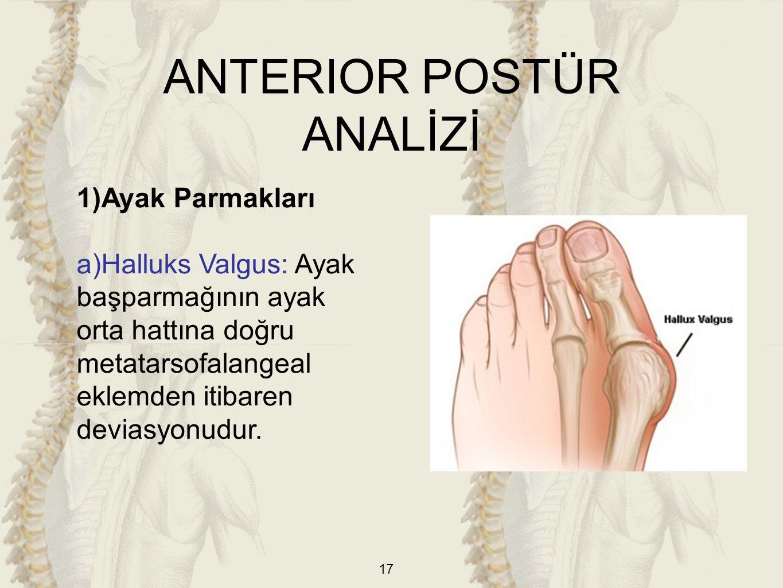 17 ANTERIOR POSTÜR ANALİZİ 1)Ayak Parmakları a)Halluks Valgus: Ayak başparmağının ayak orta hattına doğru metatarsofalangeal eklemden itibaren deviasy