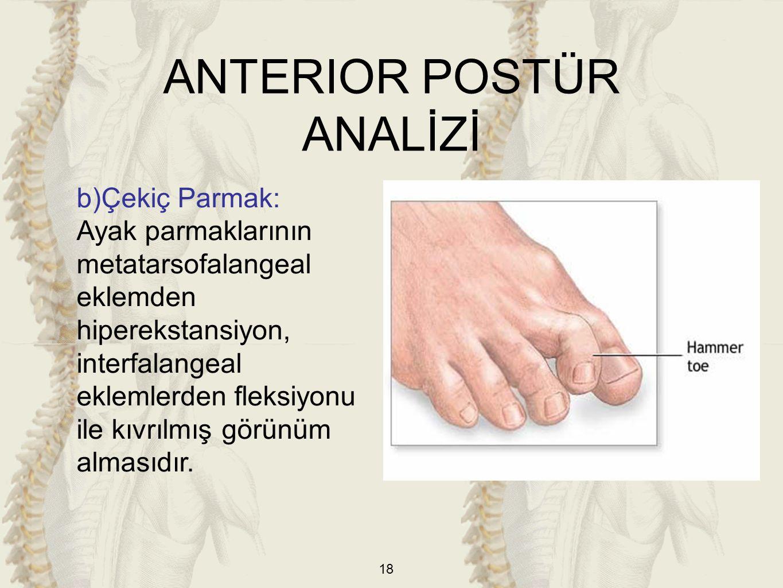 18 b)Çekiç Parmak: Ayak parmaklarının metatarsofalangeal eklemden hiperekstansiyon, interfalangeal eklemlerden fleksiyonu ile kıvrılmış görünüm alması