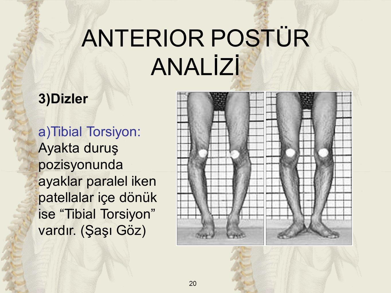 """20 3)Dizler a)Tibial Torsiyon: Ayakta duruş pozisyonunda ayaklar paralel iken patellalar içe dönük ise """"Tibial Torsiyon"""" vardır. (Şaşı Göz) ANTERIOR P"""