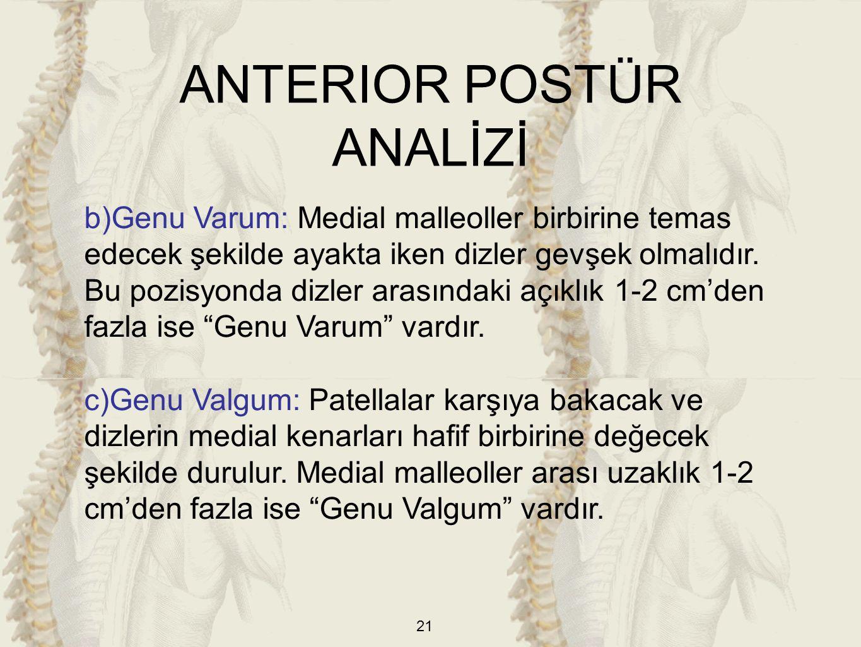 21 b)Genu Varum: Medial malleoller birbirine temas edecek şekilde ayakta iken dizler gevşek olmalıdır. Bu pozisyonda dizler arasındaki açıklık 1-2 cm'