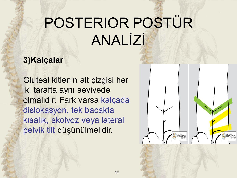 40 3)Kalçalar Gluteal kitlenin alt çizgisi her iki tarafta aynı seviyede olmalıdır. Fark varsa kalçada dislokasyon, tek bacakta kısalık, skolyoz veya