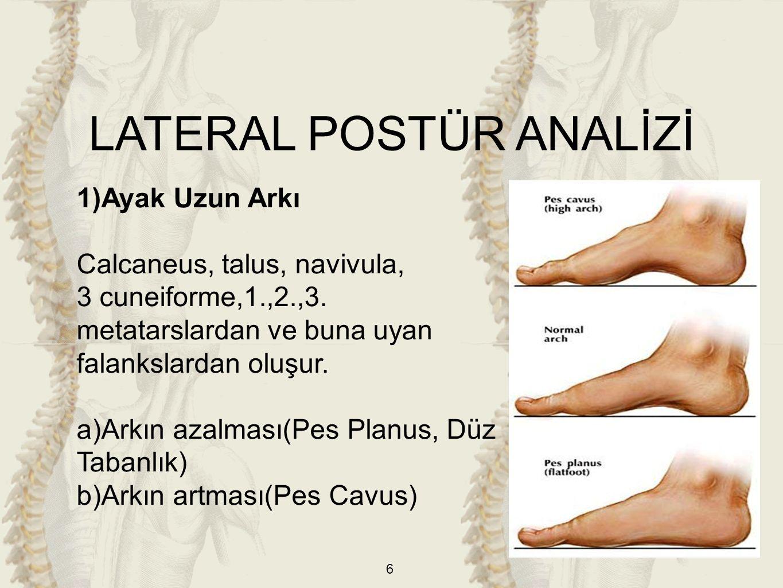 17 ANTERIOR POSTÜR ANALİZİ 1)Ayak Parmakları a)Halluks Valgus: Ayak başparmağının ayak orta hattına doğru metatarsofalangeal eklemden itibaren deviasyonudur.