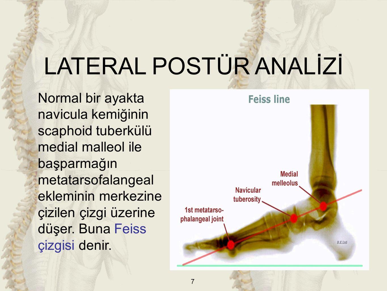 18 b)Çekiç Parmak: Ayak parmaklarının metatarsofalangeal eklemden hiperekstansiyon, interfalangeal eklemlerden fleksiyonu ile kıvrılmış görünüm almasıdır.
