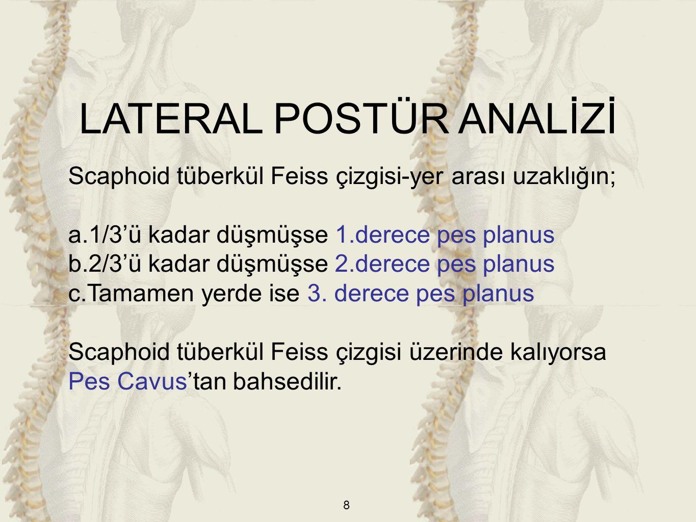 9 2)Dizler a)Genu Recurvatum (Hiperekstansiyon): Dizlerde hiperekstansiyon değerlendirilirken kemik yapı dikkate alınır.