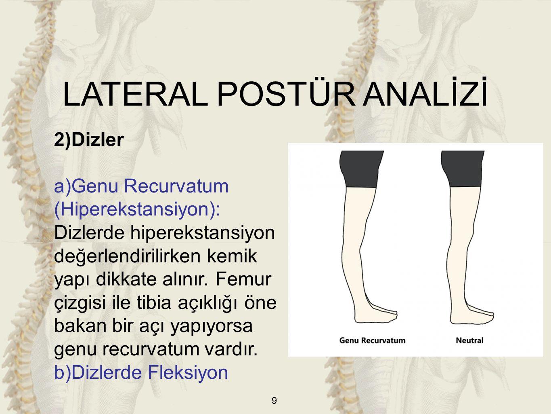 20 3)Dizler a)Tibial Torsiyon: Ayakta duruş pozisyonunda ayaklar paralel iken patellalar içe dönük ise Tibial Torsiyon vardır.
