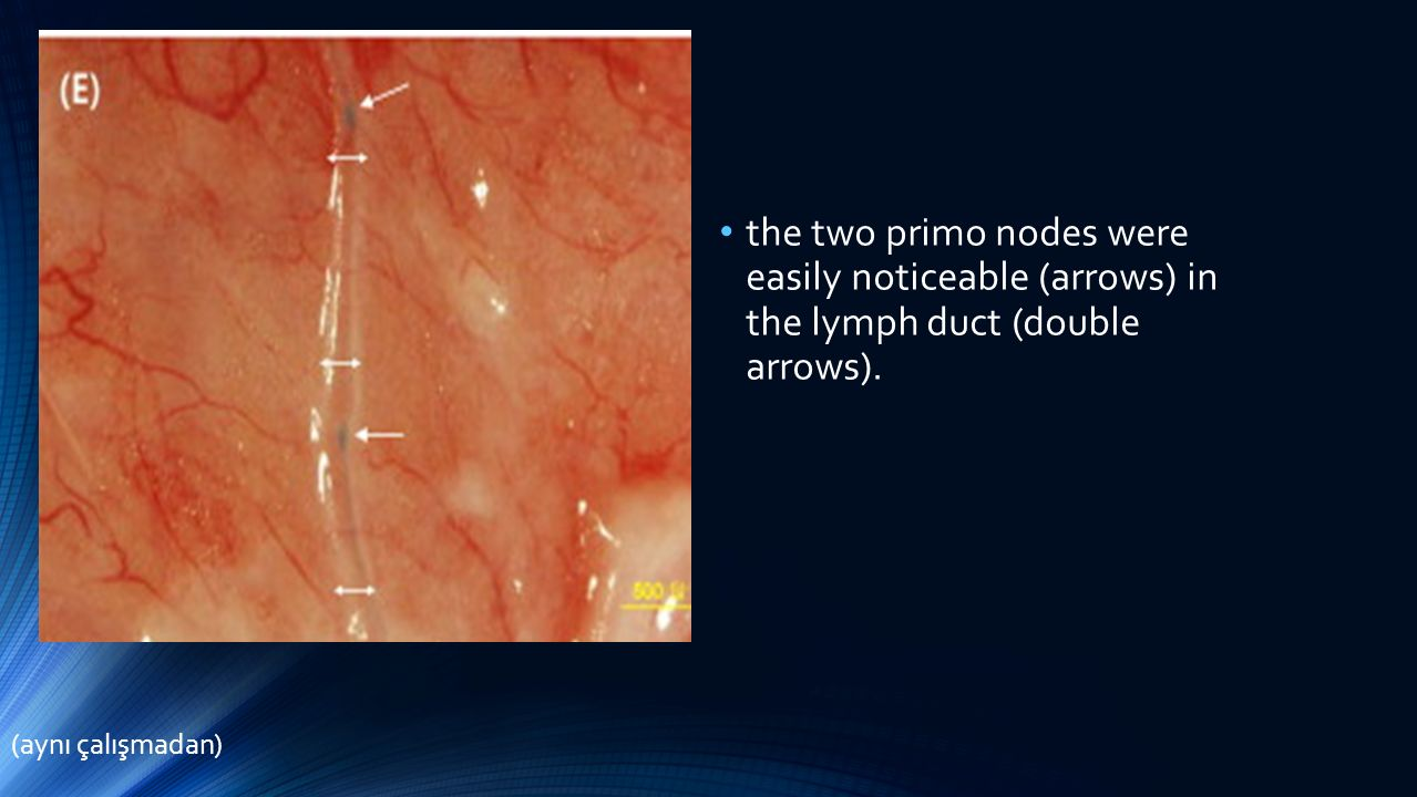 the two primo nodes were easily noticeable (arrows) in the lymph duct (double arrows). (aynı çalışmadan)