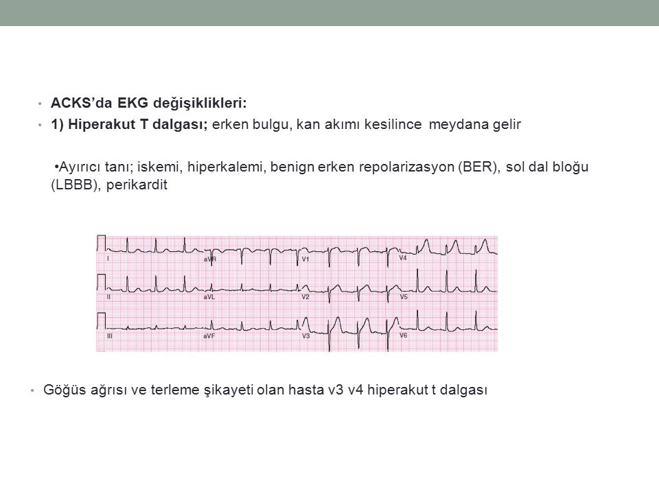 Göğüs ağrısı ve terleme şikayeti olan hasta v3 v4 hiperakut t dalgası ACKS'da EKG değişiklikleri: 1) Hiperakut T dalgası; erken bulgu, kan akımı kesilince meydana gelir Ayırıcı tanı; iskemi, hiperkalemi, benign erken repolarizasyon (BER), sol dal bloğu (LBBB), perikardit