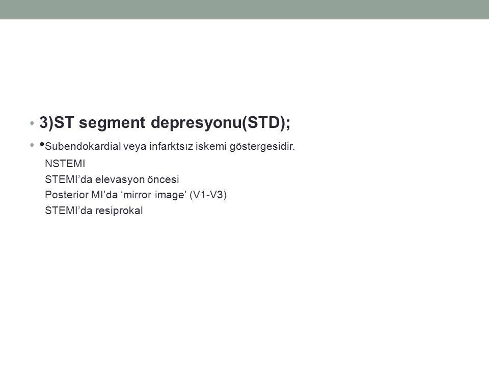 3)ST segment depresyonu(STD); Subendokardial veya infarktsız iskemi göstergesidir. NSTEMI STEMI'da elevasyon öncesi Posterior MI'da 'mirror image' (V1