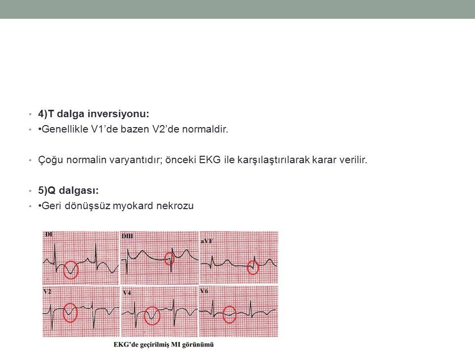 4)T dalga inversiyonu: Genellikle V1'de bazen V2'de normaldir. Çoğu normalin varyantıdır; önceki EKG ile karşılaştırılarak karar verilir. 5)Q dalgası: