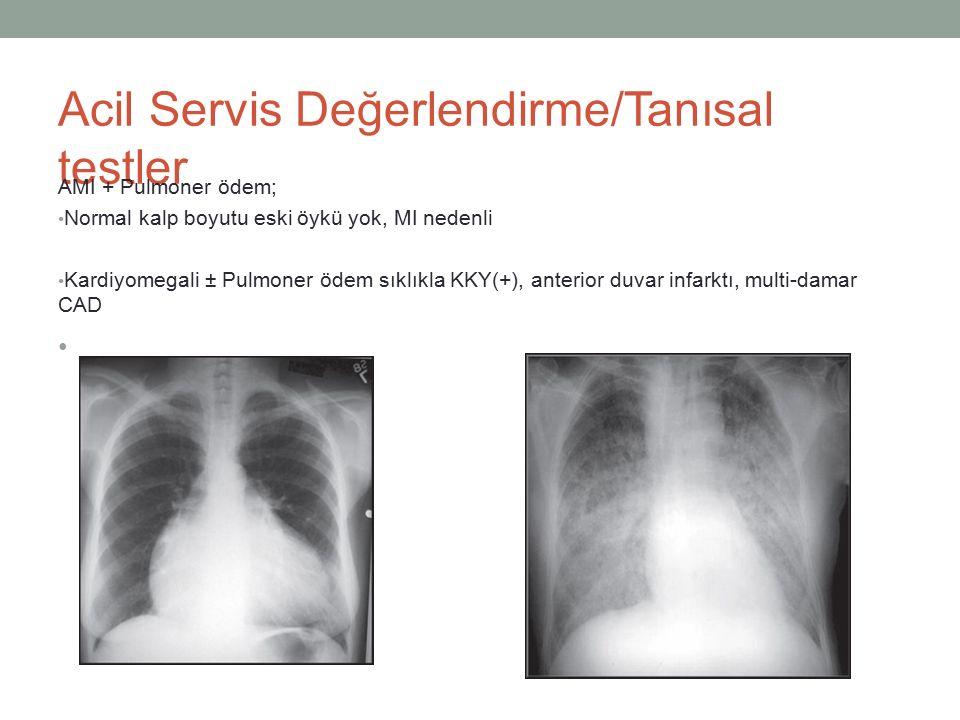 Acil Servis Değerlendirme/Tanısal testler AMI + Pulmoner ödem; Normal kalp boyutu eski öykü yok, MI nedenli Kardiyomegali ± Pulmoner ödem sıklıkla KKY(+), anterior duvar infarktı, multi-damar CAD