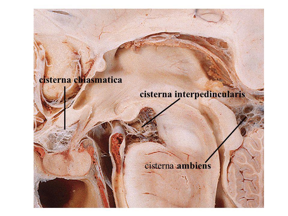 cisterna chiasmatica cisterna interpedincularis cisterna ambiens