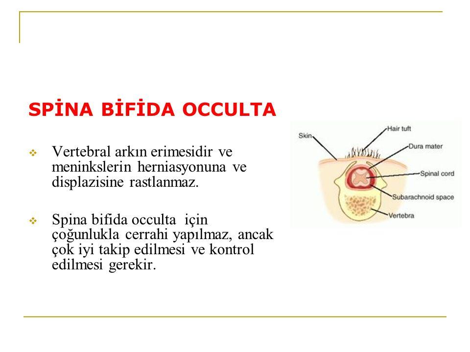 SPİNA BİFİDA OCCULTA  Vertebral arkın erimesidir ve meninkslerin herniasyonuna ve displazisine rastlanmaz.  Spina bifida occulta için çoğunlukla cer