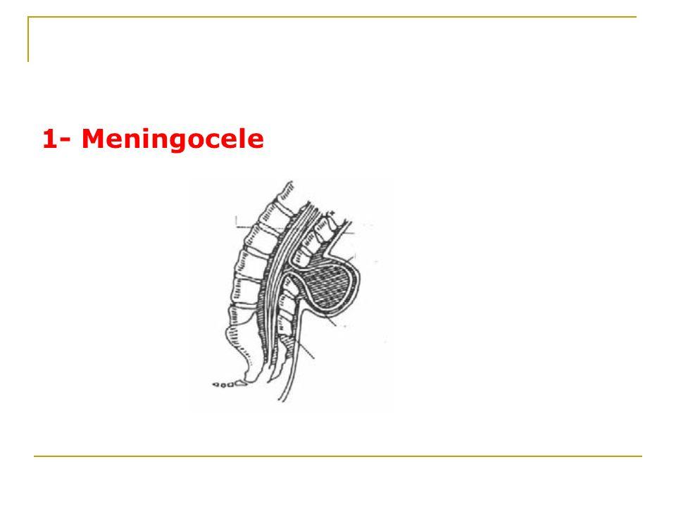 1- Meningocele