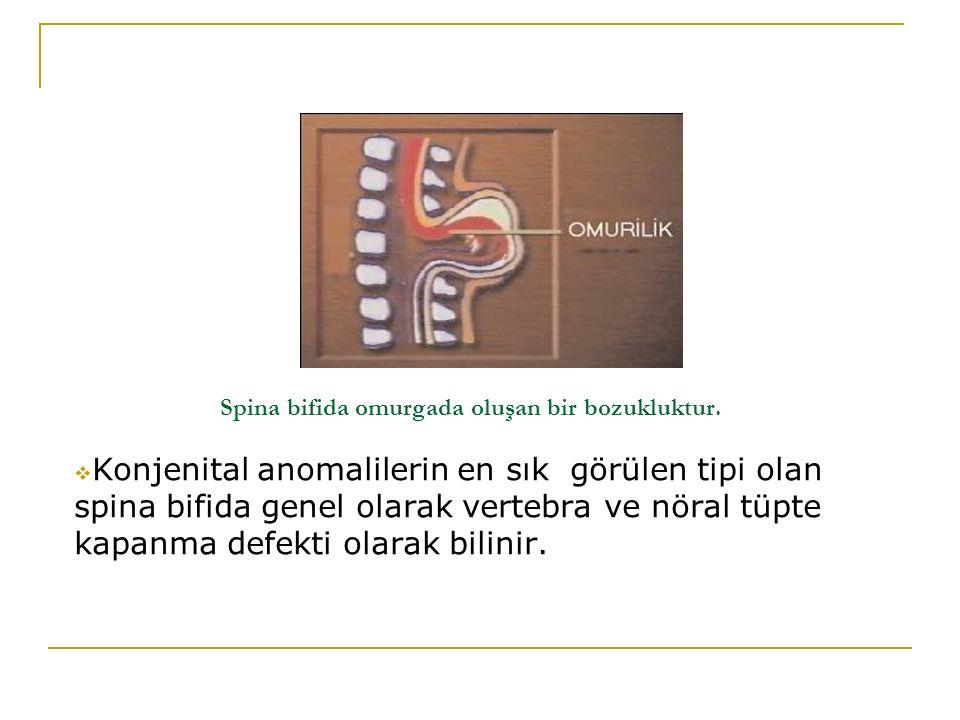 Spina bifida omurgada oluşan bir bozukluktur.  Konjenital anomalilerin en sık görülen tipi olan spina bifida genel olarak vertebra ve nöral tüpte kap