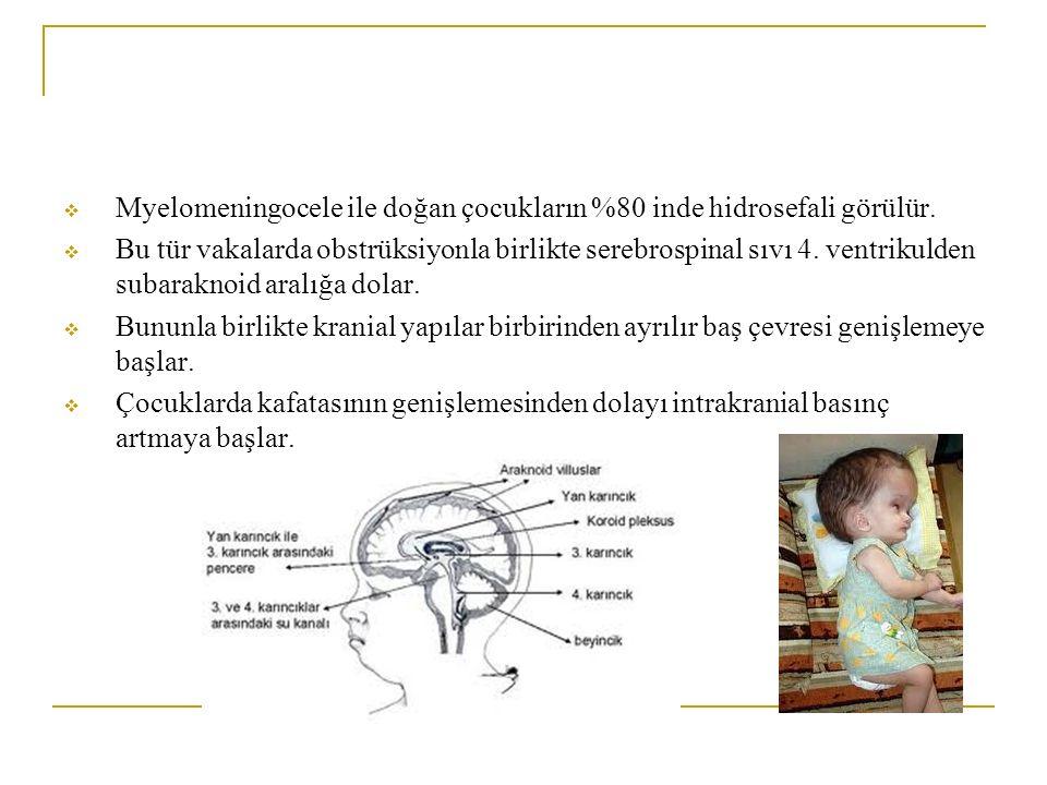  Myelomeningocele ile doğan çocukların %80 inde hidrosefali görülür.  Bu tür vakalarda obstrüksiyonla birlikte serebrospinal sıvı 4. ventrikulden su