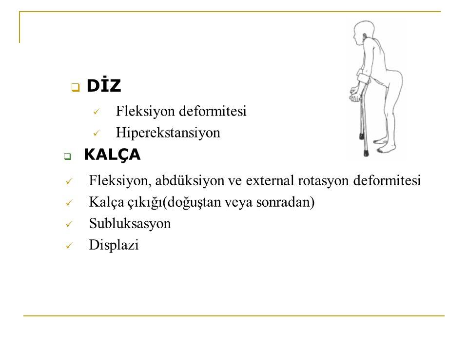  DİZ Fleksiyon deformitesi Hiperekstansiyon  KALÇA Fleksiyon, abdüksiyon ve external rotasyon deformitesi Kalça çıkığı(doğuştan veya sonradan) Sublu