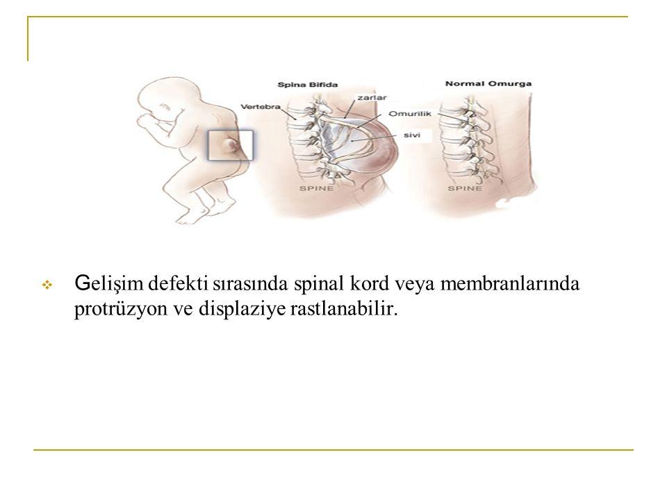  G elişim defekti sırasında spinal kord veya membranlarında protrüzyon ve displaziye rastlanabilir.