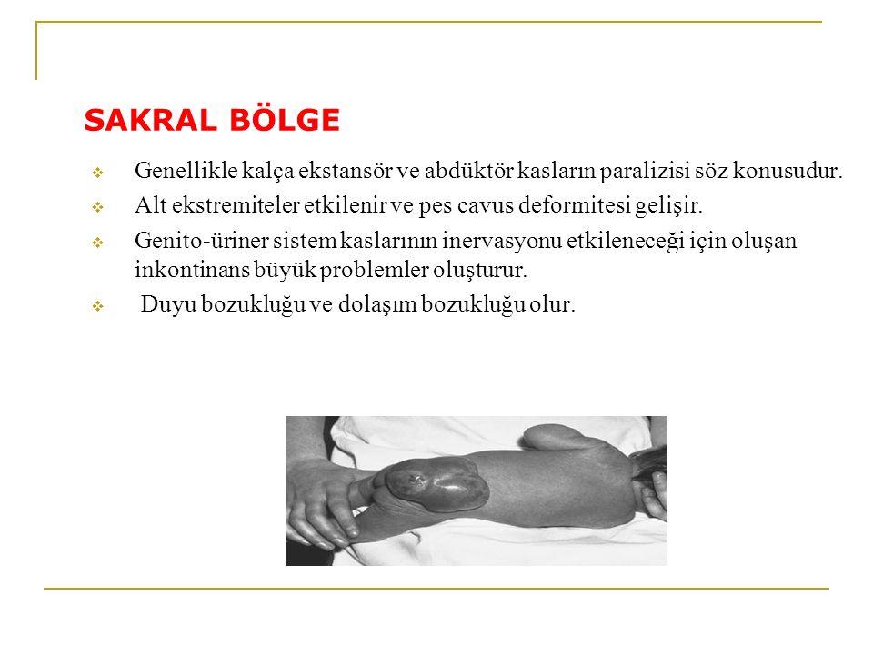 SAKRAL BÖLGE  Genellikle kalça ekstansör ve abdüktör kasların paralizisi söz konusudur.  Alt ekstremiteler etkilenir ve pes cavus deformitesi gelişi