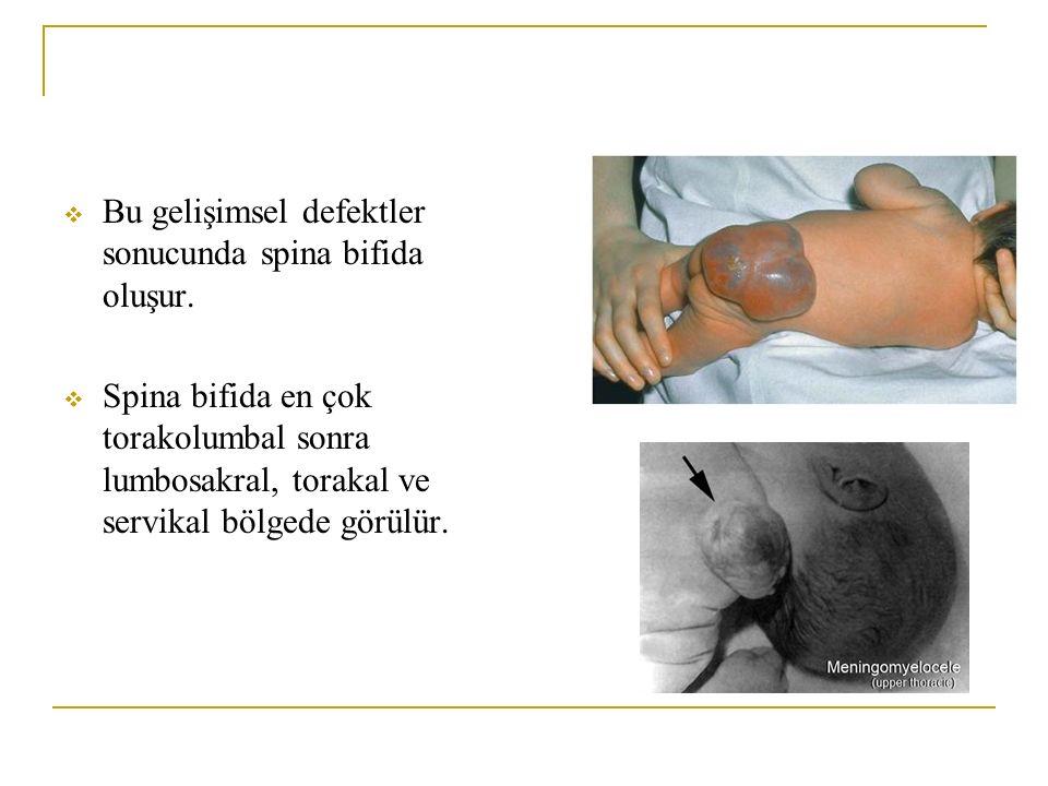  Bu gelişimsel defektler sonucunda spina bifida oluşur.  Spina bifida en çok torakolumbal sonra lumbosakral, torakal ve servikal bölgede görülür.