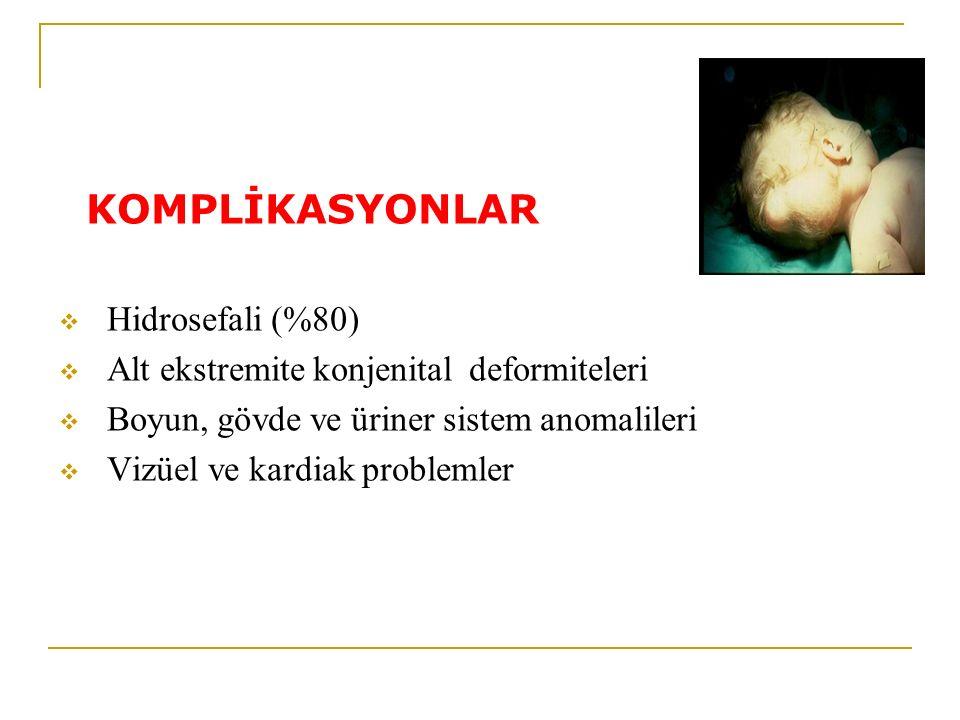 KOMPLİKASYONLAR  Hidrosefali (%80)  Alt ekstremite konjenital deformiteleri  Boyun, gövde ve üriner sistem anomalileri  Vizüel ve kardiak probleml
