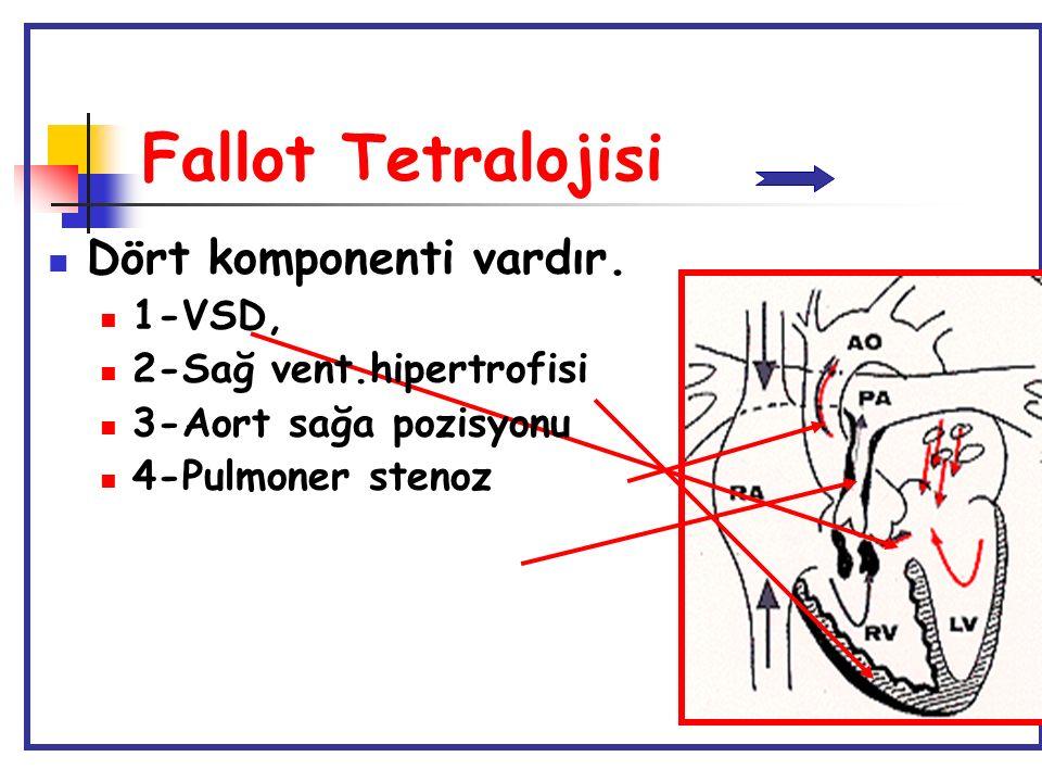 Fallot Tetralojisi Dört komponenti vardır. 1-VSD, 2-Sağ vent.hipertrofisi 3-Aort sağa pozisyonu 4-Pulmoner stenoz