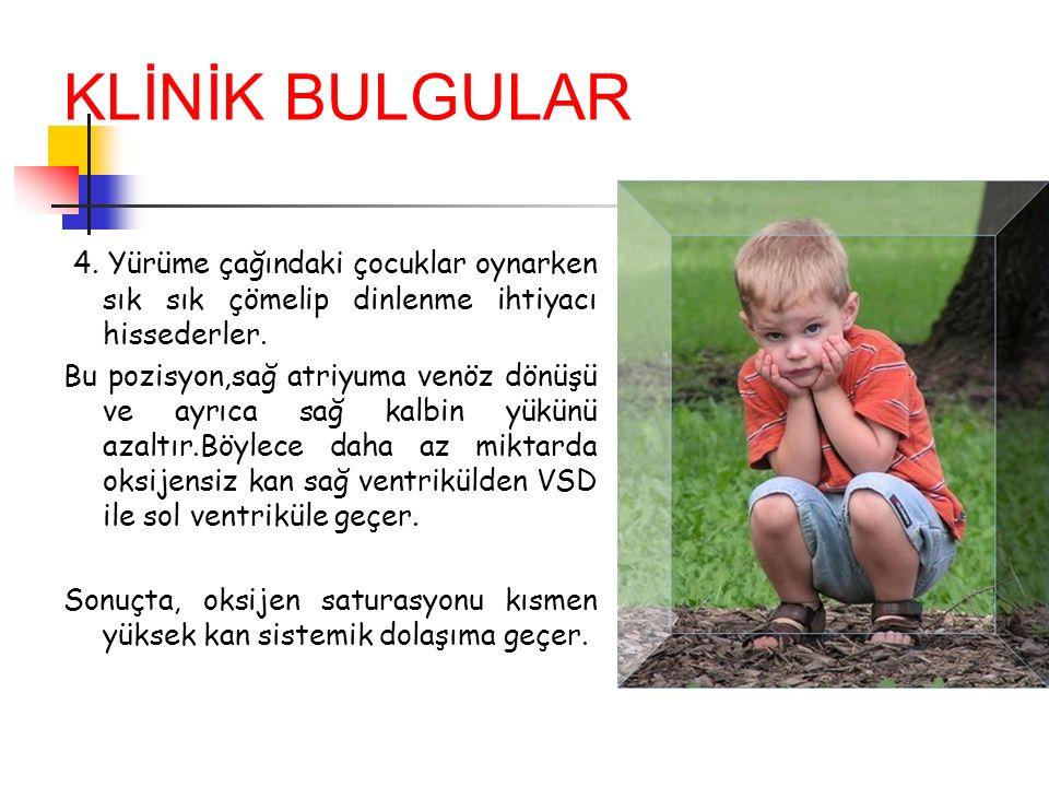 4. Yürüme çağındaki çocuklar oynarken sık sık çömelip dinlenme ihtiyacı hissederler. Bu pozisyon,sağ atriyuma venöz dönüşü ve ayrıca sağ kalbin yükünü