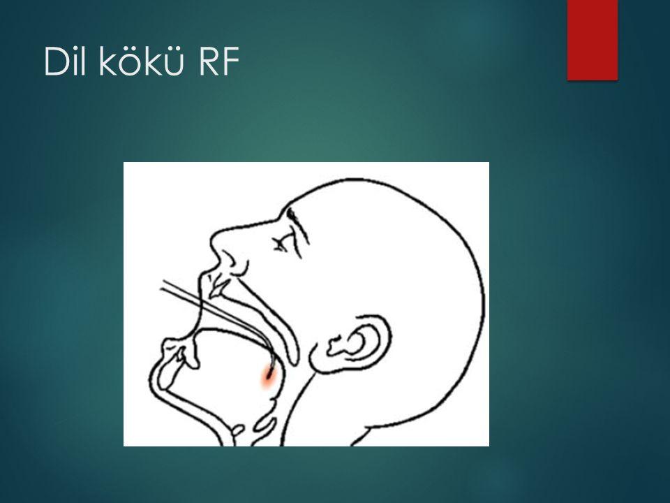 Dil kökü RF