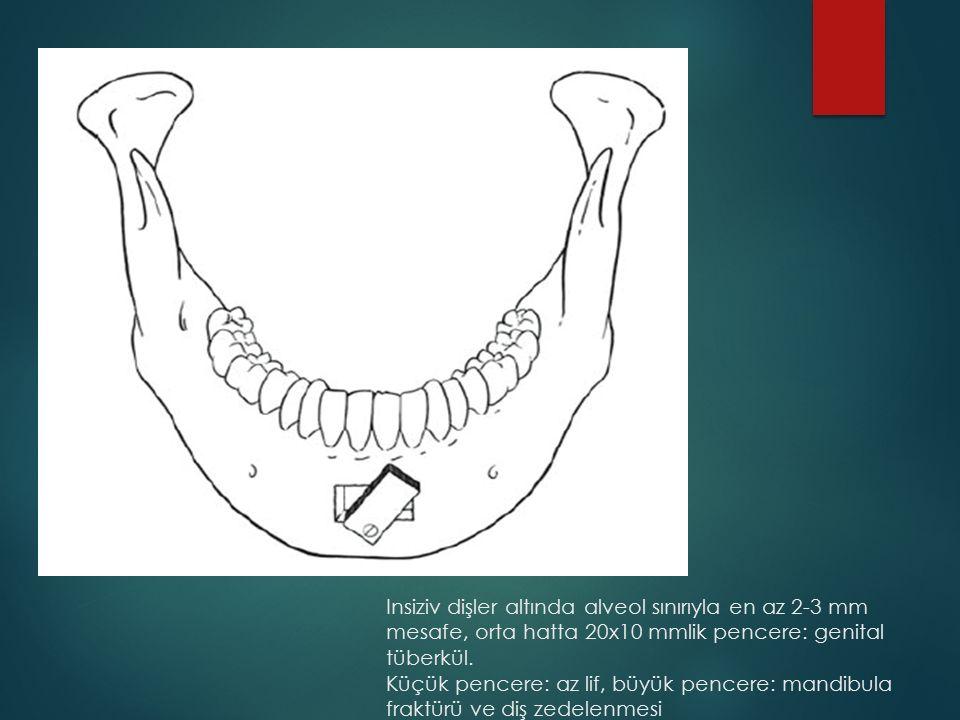 Insiziv dişler altında alveol sınırıyla en az 2-3 mm mesafe, orta hatta 20x10 mmlik pencere: genital tüberkül. Küçük pencere: az lif, büyük pencere: m