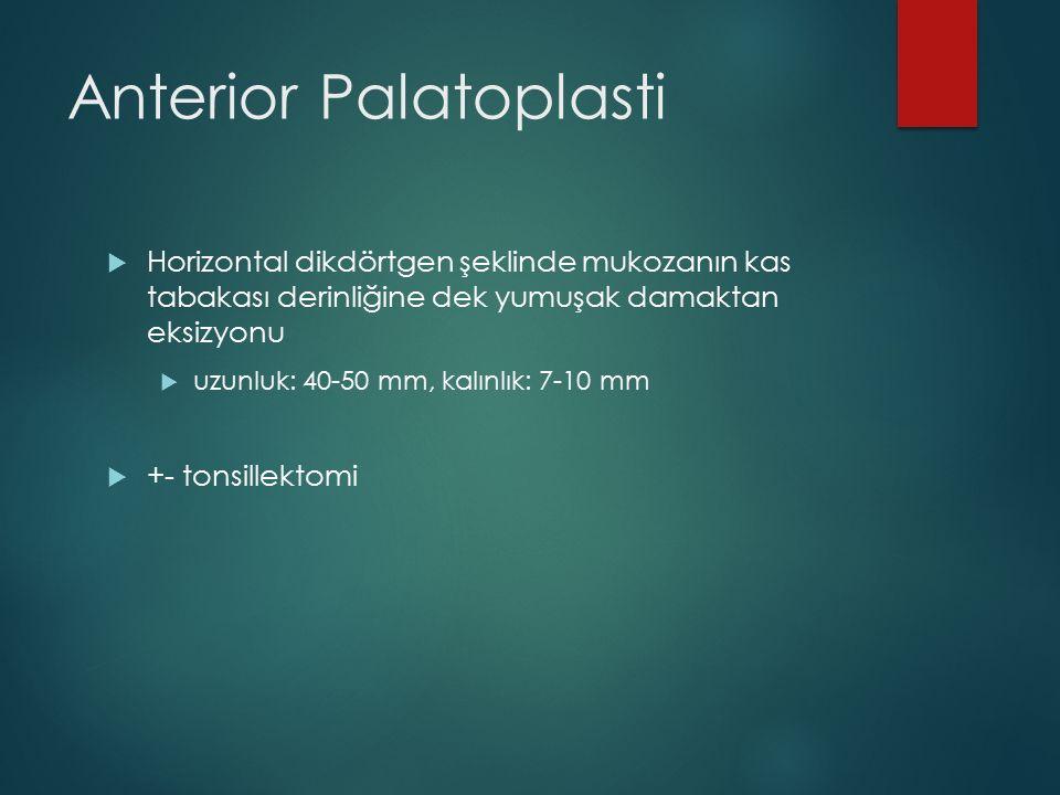  Horizontal dikdörtgen şeklinde mukozanın kas tabakası derinliğine dek yumuşak damaktan eksizyonu  uzunluk: 40-50 mm, kalınlık: 7-10 mm  +- tonsill