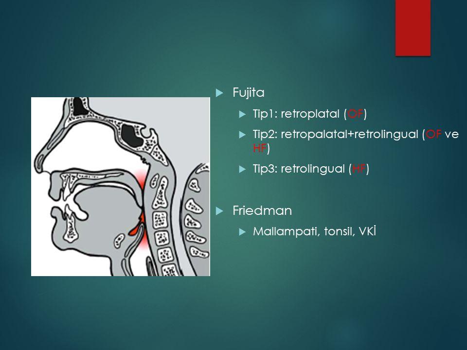 Fujita  Tip1: retroplatal (OF)  Tip2: retropalatal+retrolingual (OF ve HF)  Tip3: retrolingual (HF)  Friedman  Mallampati, tonsil, VKİ