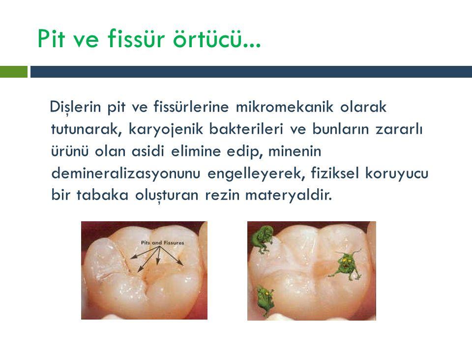 Pit ve fissür örtücü... Dişlerin pit ve fissürlerine mikromekanik olarak tutunarak, karyojenik bakterileri ve bunların zararlı ürünü olan asidi elimin