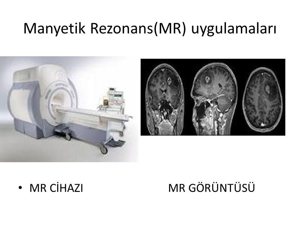 Manyetik Rezonans(MR) uygulamaları MR CİHAZIMR GÖRÜNTÜSÜ