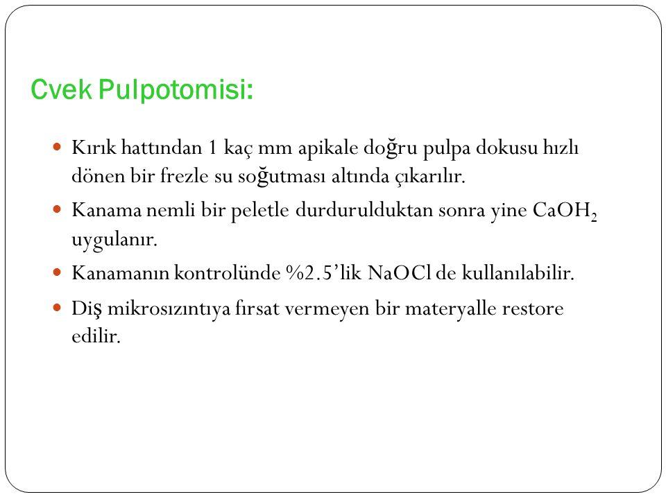 Cvek Pulpotomisi: Kırık hattından 1 kaç mm apikale do ğ ru pulpa dokusu hızlı dönen bir frezle su so ğ utması altında çıkarılır. Kanama nemli bir pele