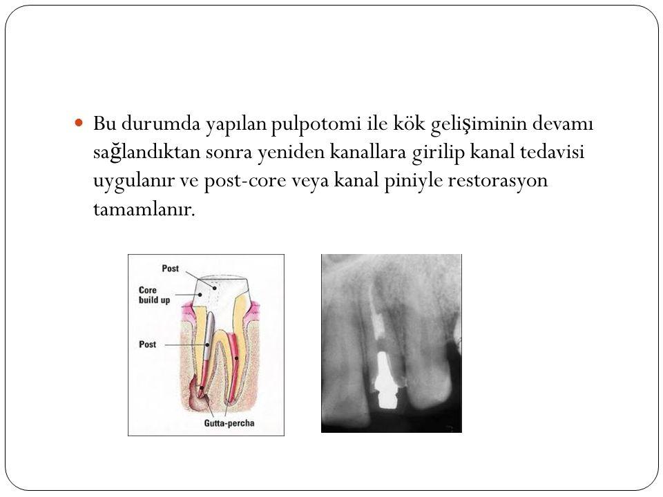Bu durumda yapılan pulpotomi ile kök geli ş iminin devamı sa ğ landıktan sonra yeniden kanallara girilip kanal tedavisi uygulanır ve post-core veya ka