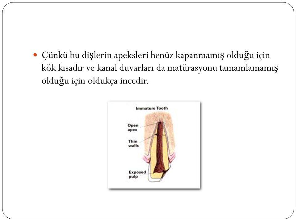 Çünkü apikal dokuların vitaliteleri son derece önemlidir… apikal kapanma için indüksiyonu sa ğ larlar.
