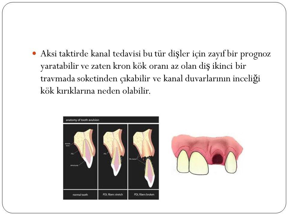 Genç molar di ş lerde uygulanabilecek di ğ er pulpotomi yöntemi yaygın olarak kullanılan CaOH 2 amputasyonudur.