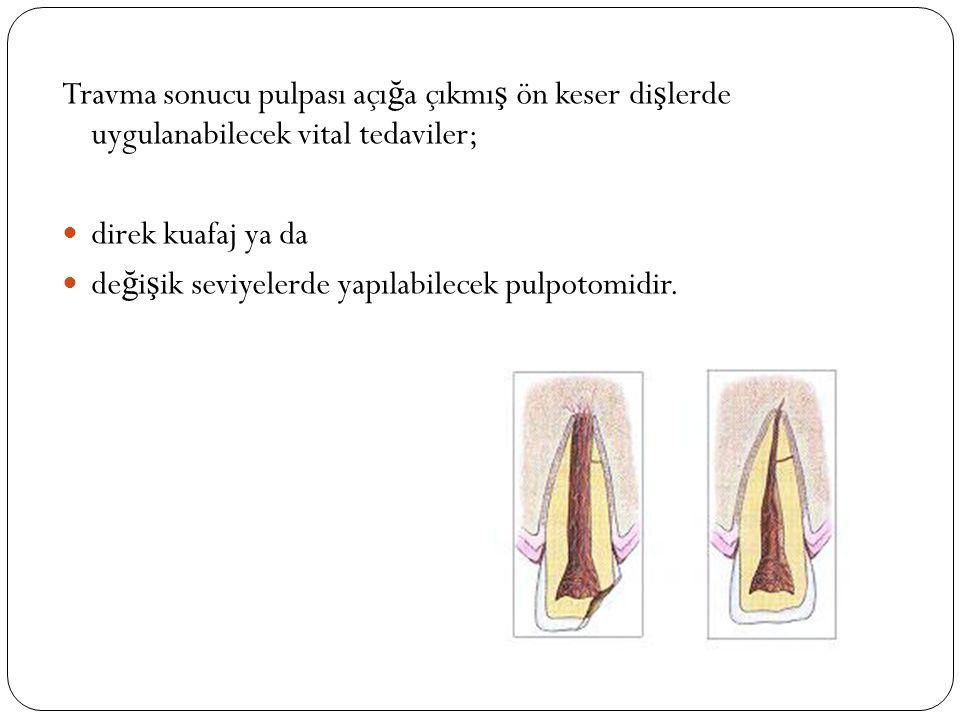 Travma sonucu pulpası açı ğ a çıkmı ş ön keser di ş lerde uygulanabilecek vital tedaviler; direk kuafaj ya da de ğ i ş ik seviyelerde yapılabilecek pu