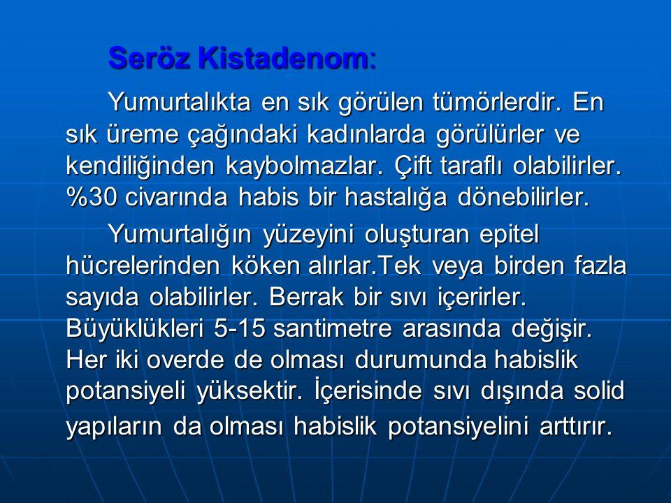 Seröz Kistadenom: Yumurtalıkta en sık görülen tümörlerdir.