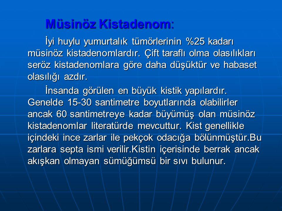 Müsinöz Kistadenom: İyi huylu yumurtalık tümörlerinin %25 kadarı müsinöz kistadenomlardır.