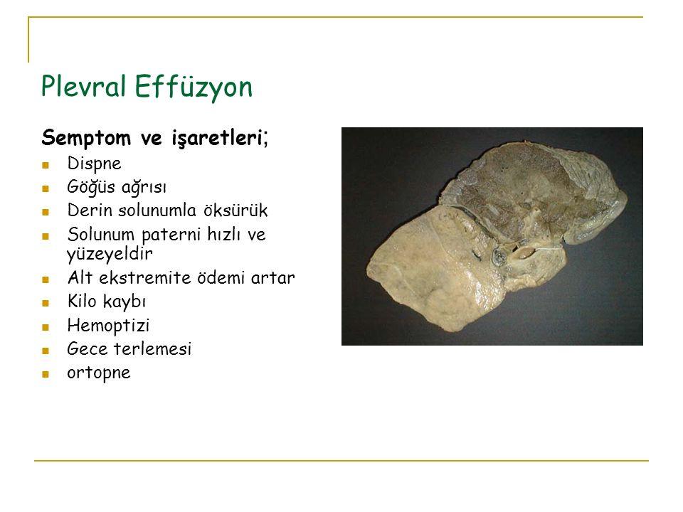 Plevral Effüzyon Semptom ve işaretleri ; Dispne Göğüs ağrısı Derin solunumla öksürük Solunum paterni hızlı ve yüzeyeldir Alt ekstremite ödemi artar Ki