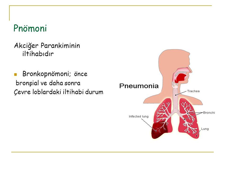 Pnömoni Akciğer Parankiminin iltihabıdır Bronkopnömoni; önce bronşial ve daha sonra Çevre loblardaki iltihabi durum
