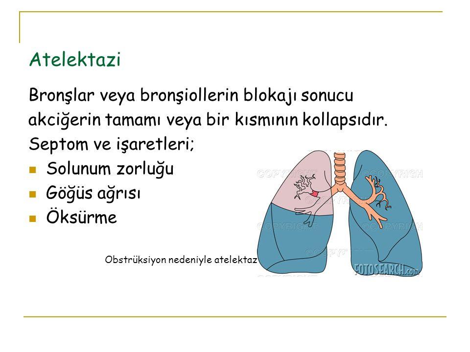 Atelektazi Bronşlar veya bronşiollerin blokajı sonucu akciğerin tamamı veya bir kısmının kollapsıdır. Septom ve işaretleri; Solunum zorluğu Göğüs ağrı