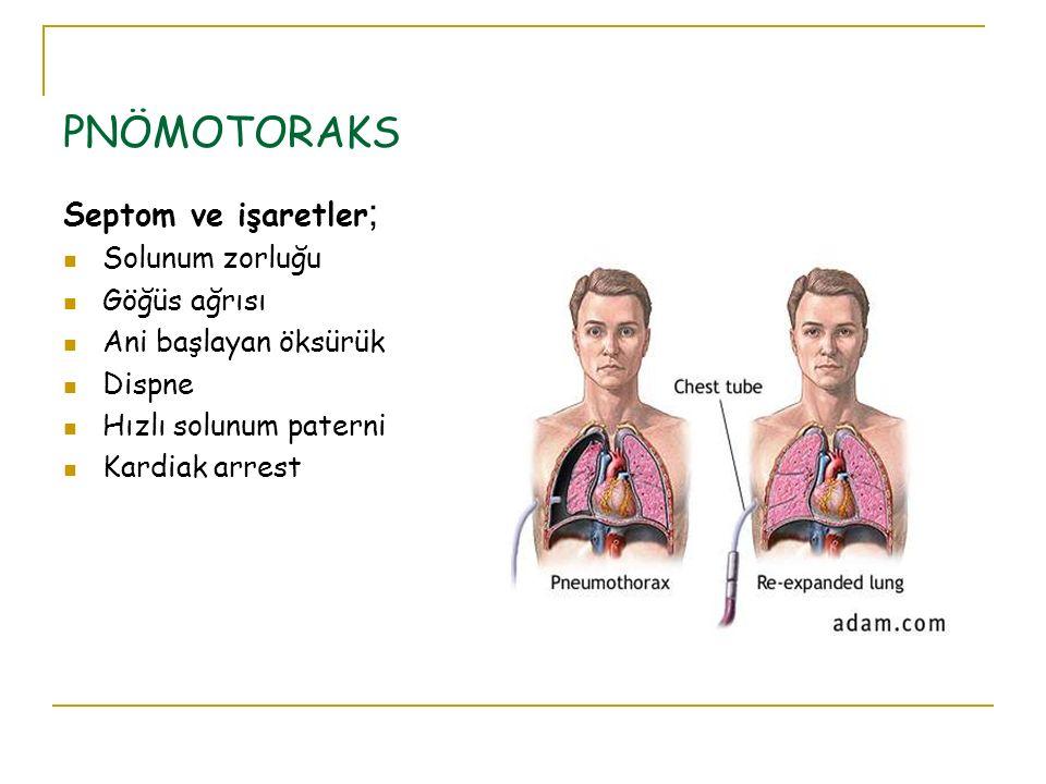 PNÖMOTORAKS Septom ve işaretler ; Solunum zorluğu Göğüs ağrısı Ani başlayan öksürük Dispne Hızlı solunum paterni Kardiak arrest