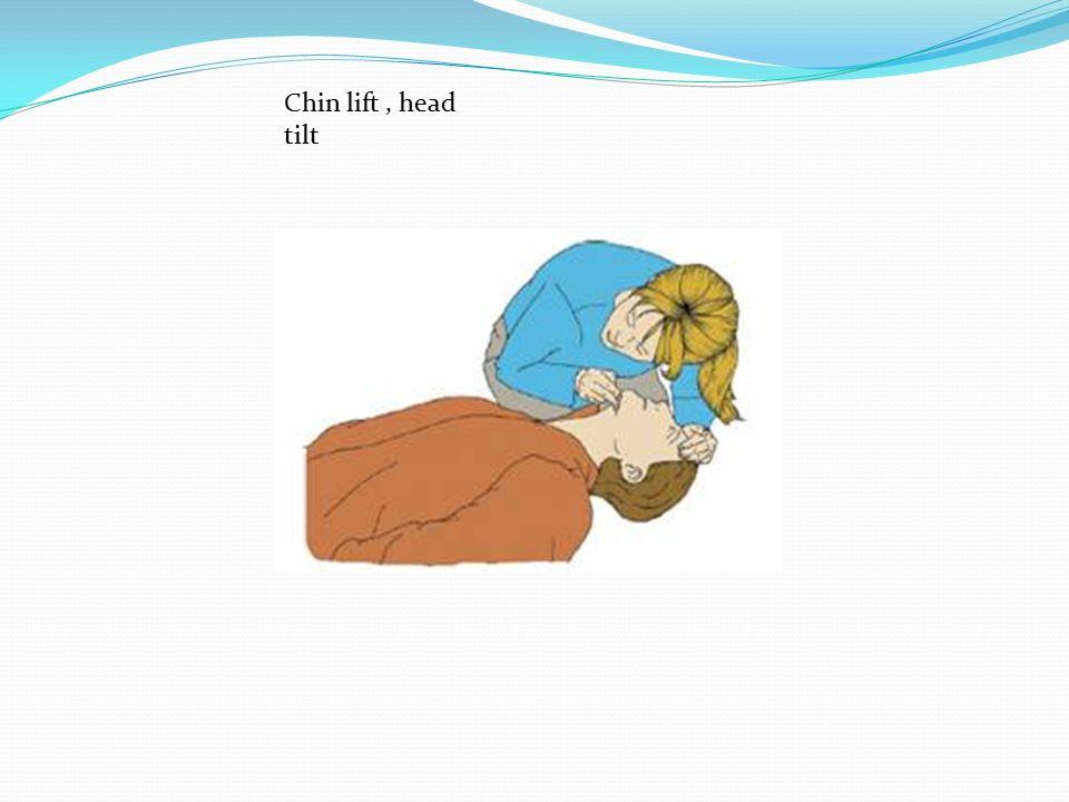Chin lift, head tilt