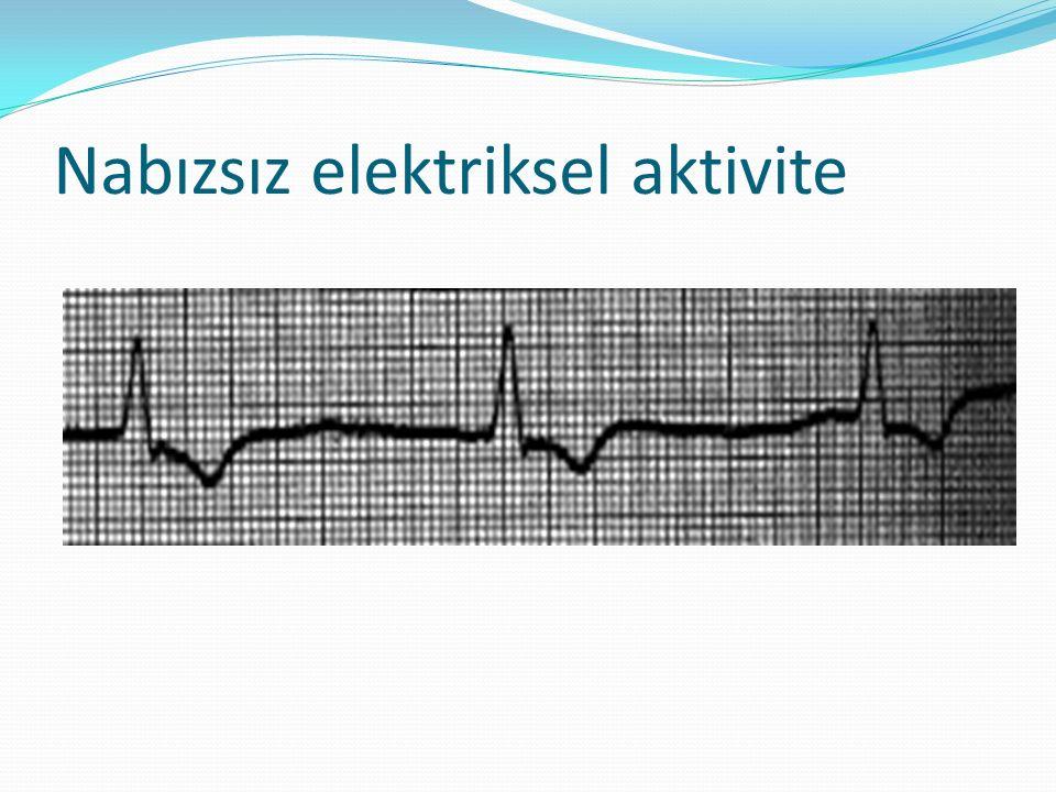 Nabızsız elektriksel aktivite