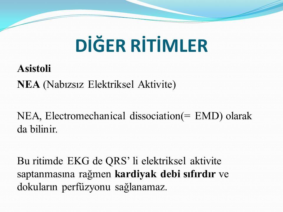 DİĞER RİTİMLER Asistoli NEA (Nabızsız Elektriksel Aktivite) NEA, Electromechanical dissociation(= EMD) olarak da bilinir. Bu ritimde EKG de QRS' li el