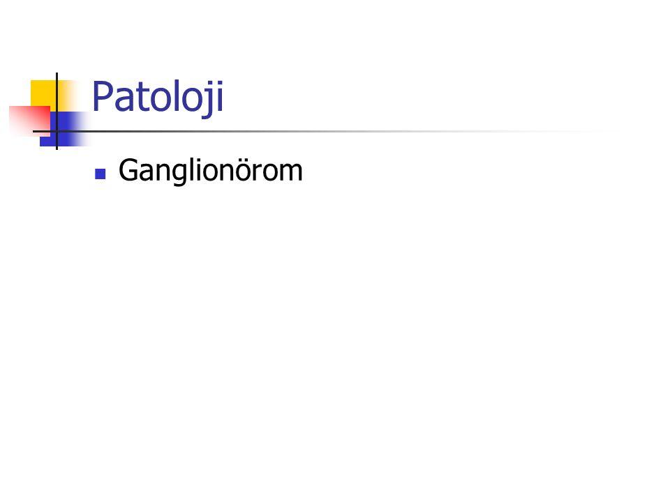 Patoloji Ganglionörom